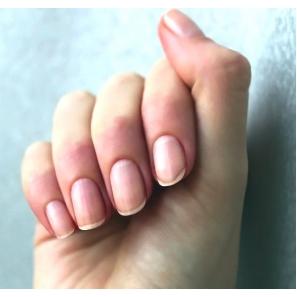 Ногти - индикатор здоровья
